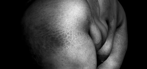 La nudité freudienne de Gwenaël Mersaoui